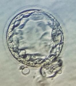 Blastocisto eclosionando